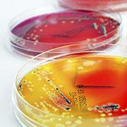 Mikrobiologie - Petrischalen mit Bakterienkulturen