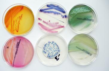 E. coli, Pseudomonaden.jpg