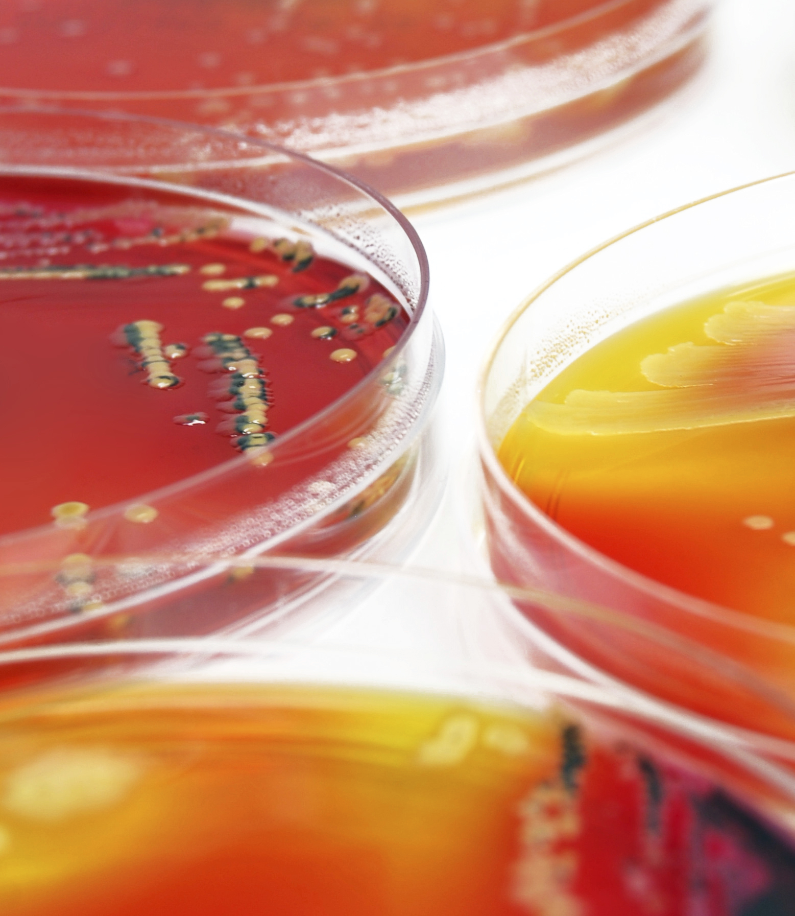 Bacterial characterization