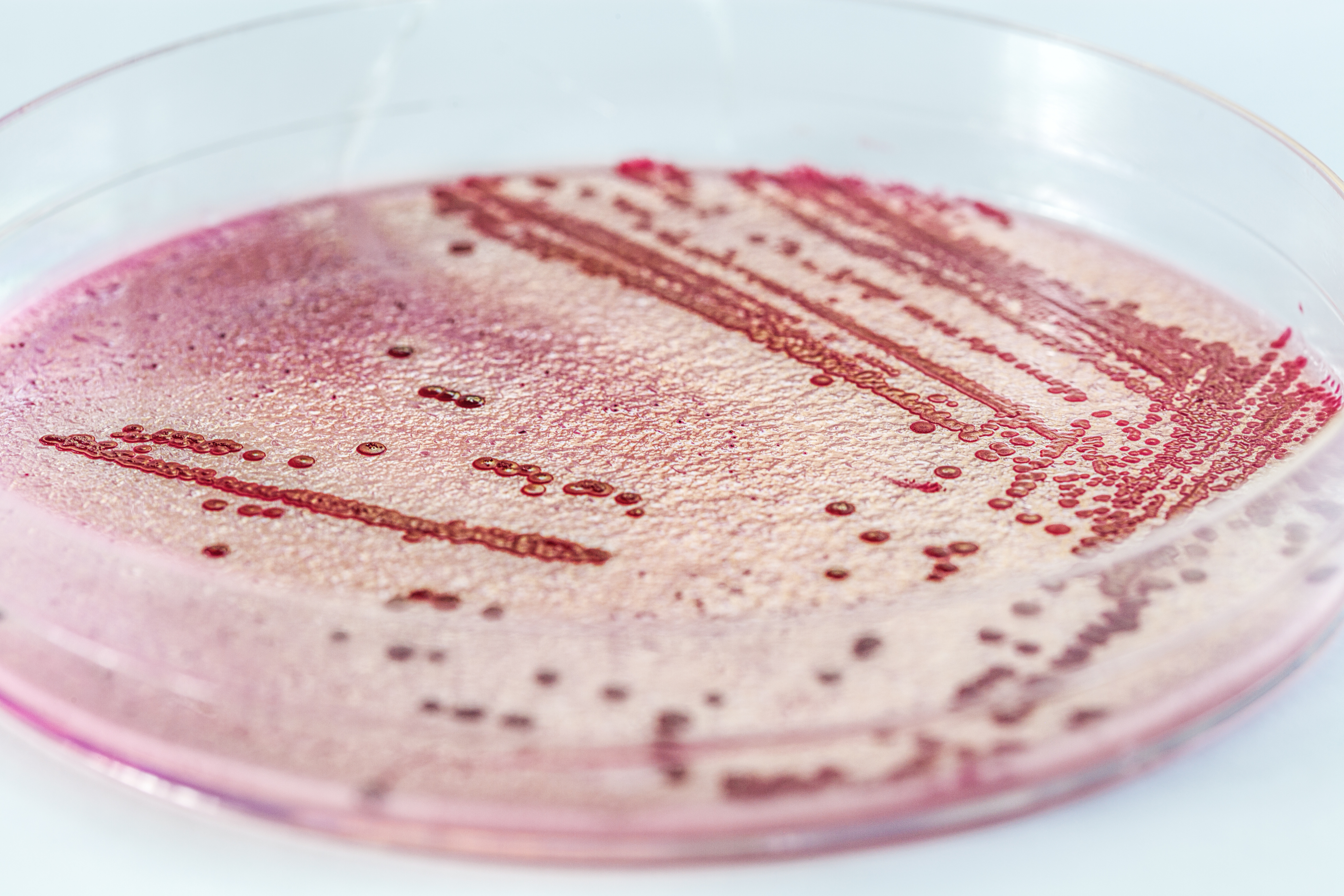 Microbial Identifications