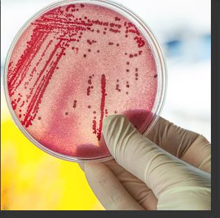 Challenge Test boite de petri